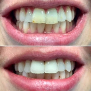 Teeth-Whitening-and-spa-The-Tanning-Lounge-2