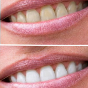 Teeth-Whitening-and-spa-The-Tanning-Lounge-3