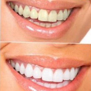 Teeth-Whitening-and-spa-The-Tanning-Lounge-4